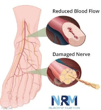 Neuropatía periférica - circulación sanguínea reducida que causa daño a los nervios