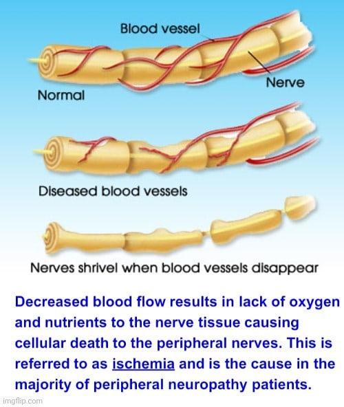 Neuropatía periférica -disminución del flujo sanguíneo (isquemia)