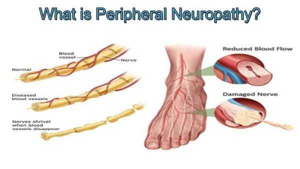 Neuropatía periférica - ¿Qué es la neuropatía periférica?