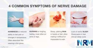 Neuropatía sensorial -Síntomas de daño nervioso