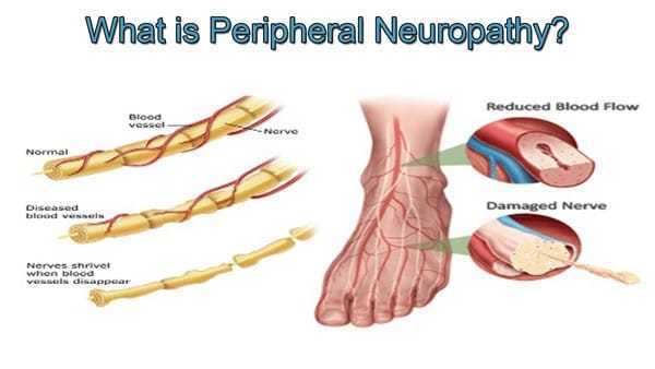 Perpherial Neuropathy – Risk factors and causes