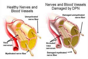 Sensory Neuropathy - Peripheral Sensory Nerves