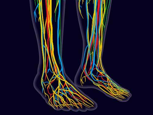 Sensory Neuropathy -Treatment Protocol for Sensory Neuropathy