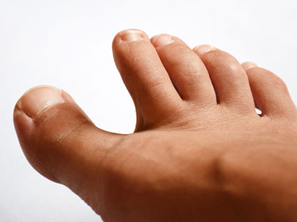 Numbness in Toes - Risk for Developing Numbness in Toes