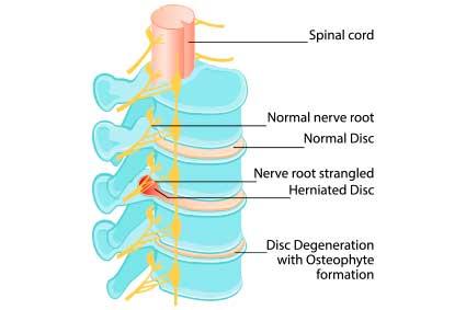 3 Common Types of Peripheral Neuropathy - the Solution for Peripheral Neuropathy