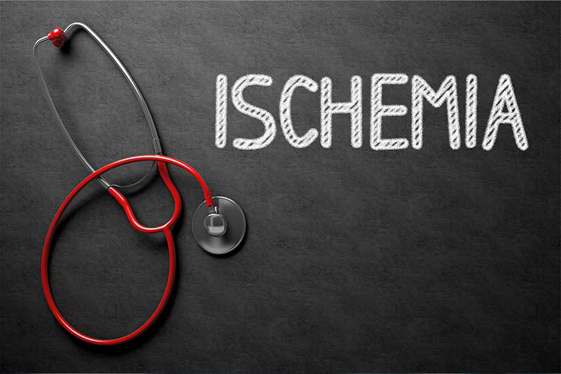 What is Ischemia? Why Is It A Major Cause Of Peripheral Neuropathy? - Peripheral Neuropathy